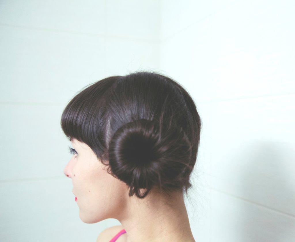 20代女性の薄毛が増えている