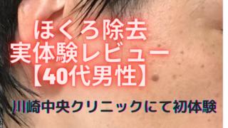 ほくろ除去を40代男性が川崎中央クリニックにて初体験 レビュー