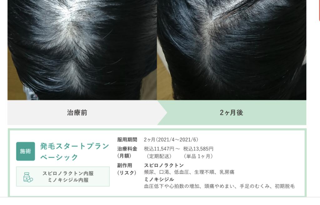 料金・費用|クリニックフォア女性薄毛治療